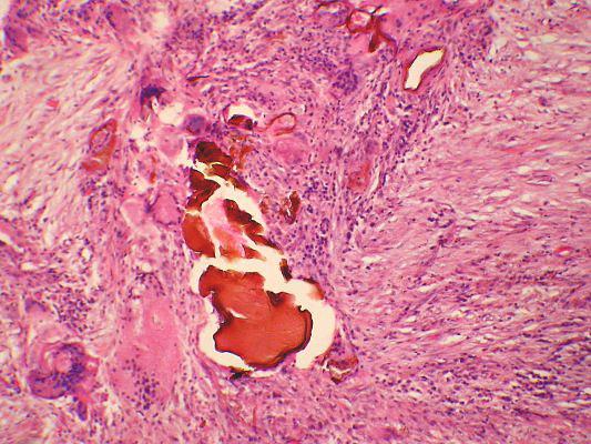 Lymphoma Sarcoidosis Dogs | 533 x 400 jpeg 90kB