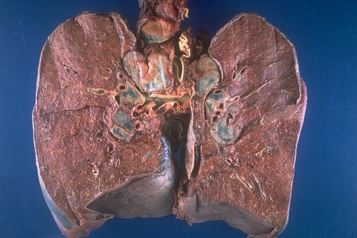 Honeycomb lung  definition of honeycomb lung by The Free