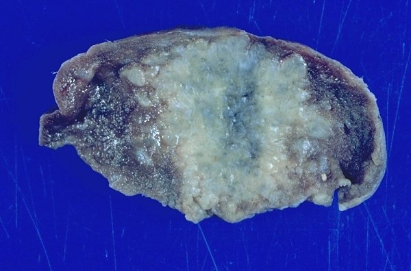 Gross photographs (images) of sarcoidosis