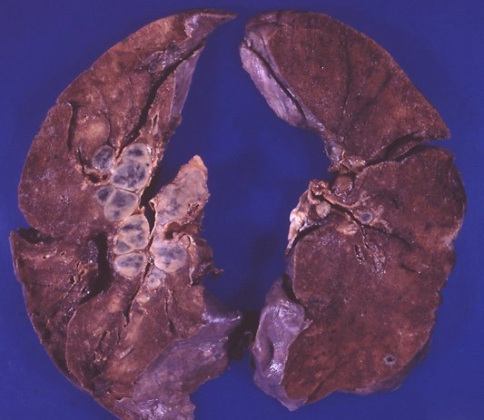 Lymph nodes - not lymphoma - Sarcoidosis
