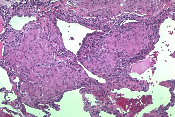 Lung involvement-microscopic