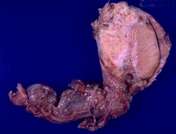tuberculous pericarditis corticosteroid
