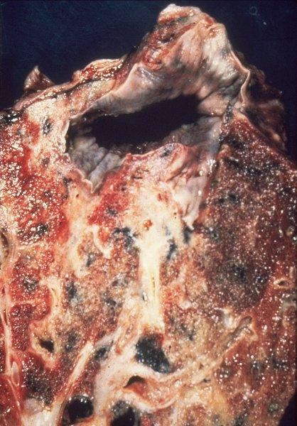 Tb Gross Lung